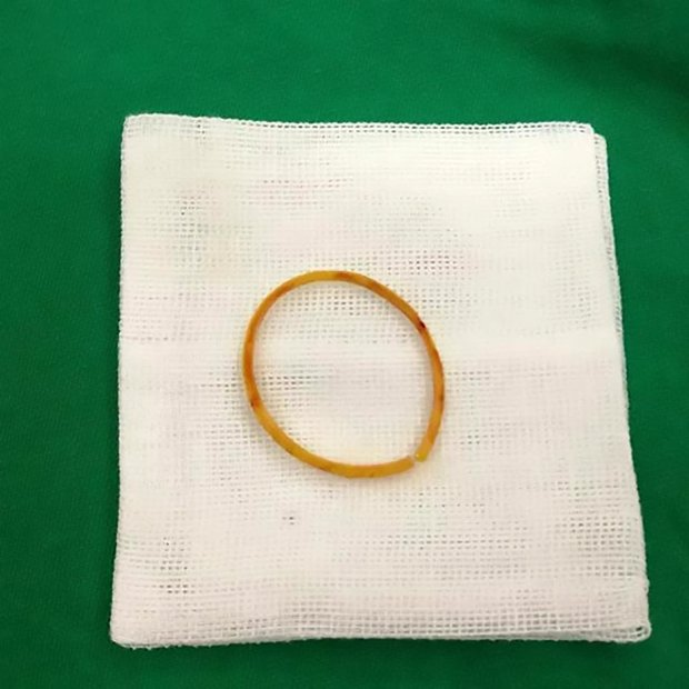 The rubber band that was inside Le Le's arm