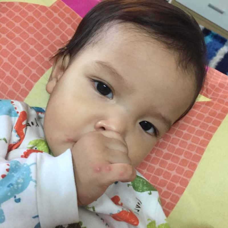 Baby Contracted Hand Foot Mouth Disease From Sitting In A Baby Chair