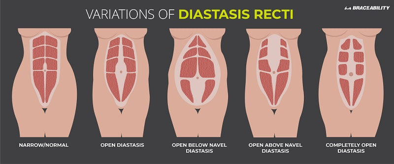 postnatal-pilates