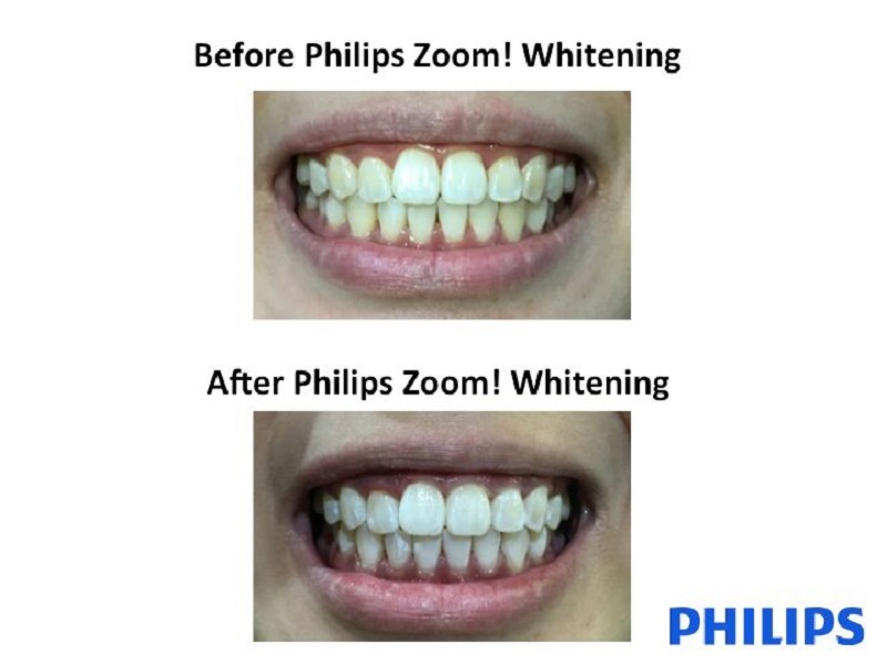 Philips-Zoom!