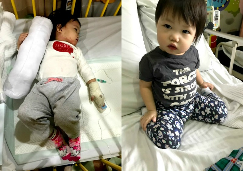 Andrea on admission day (left) and on discharge day (right). (Image Credit: Alison Tham)
