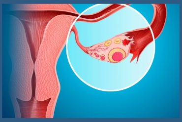 ovarian-cancer